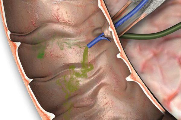 Gallengangdrainage